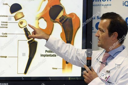 Spanish Traumatologist Angel Villamor Addresses a Press Conference to Explain the Hip Surgery For Spain's King Juan Carlos i at Quiron San Jose Hospital in Madrid Spain 24 November 2012 Villamor Led the Doctors Team who Inserted an Artificial Hip in the Spanish King's Left Hip on Last Evening Villamor Said King Juan Carlos i Will Be in Hospital For Three Or Four Days and He Could Be Completely Recovered in a Month Spain Madrid