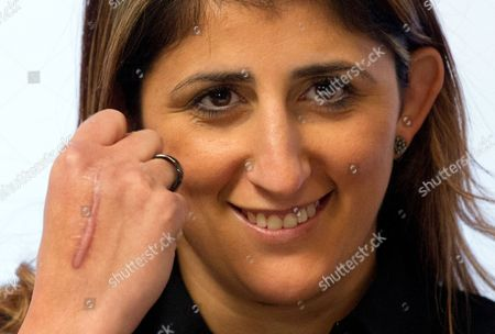 German Boxer Rola El-halabi Shows a Scar on the Back of Her Hand During a Press Conference in Ulm Germany 05 November 2012 Lebanese-born El-halabi who was Shot by Her Stepfather in Her Hand Knee and Both Feet on 01 April 2011 Celebrates Her Boxing Comeback with a Fight Against Lucia Morelli on 12 January 2013 Germany Ulm