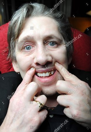 Editorial picture of Veteran Hell-raiser And Pogues Frontman Shane Macgowan With His Twenty-two New Teeth Which He Had Replaced After Being Persuaded To Do So By His Long Term Girlfriend Victoria Mary Clarke. Picture - Mark Large 09.12.15 ..xmas Keep Special.