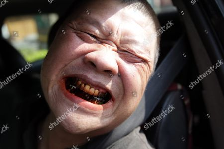 Taxi Driver Chen Shu-cheng 56 Shows Off Red Lips and Bad Teeth Caused by 43 Years of Chewing Betel Nut in Taipei Taiwan 16 October 2015 Many People in Tropical Pacific Southeast Asia and Part of East Africa Chew Betel Nut Despite the Risk of Damaged Gum Decayed Teeth and Oral Cancer Taiwan Experts Warn That For People who Chew Betel Nut As Well As Smoke and Drink Their Chance of Getting Oral Cancer More Than 100 Times Higher Than People who Don't Taiwan Taipei City