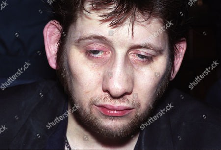 Editorial image of Shane McGowan at The Shelbourne Hotel in Dublin, Ireland - 04 Apr 1996