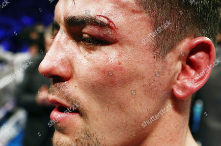 Anthony Crolla sports a cut above his eye after the WBA WBC Diamond and Ring Magazine Lightweight World Championship fight with Jorge Linares at the MEN Arena, Manchester, on 25th March 2017