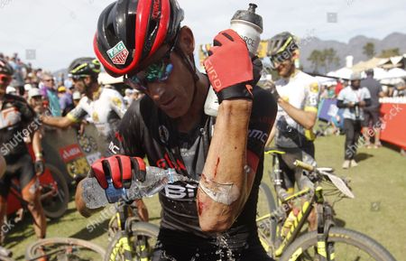 Former Tour de France rider George Hincapie from the United States poors water on his injured arm after the final stage of the 2017 ABSA Cape Epic mountain bike stage race over 103km, Paarl, South Africa, 26 March 2017.  The race is called the 'Tour de France' of mountain biking and sees 1200 riders racing over 691km during 8 stages and climbing twice the height of Mount Everest. The race sees the worlds best professional riders racing with amateur riders from 52 countries.