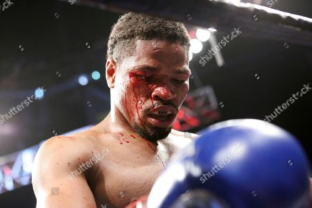 Shawn Porter is seen after defeating Andre Berto during their welterweight fight on in Brooklyn, NY. Porter won via 9th round TKO
