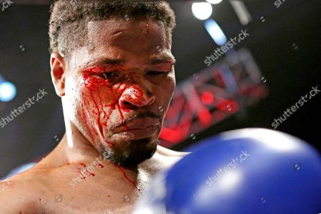A bloody Shawn Porter is seen after defeating Andre Berto during their welterweight fight on in Brooklyn, NY. Porter won via 9th round TKO