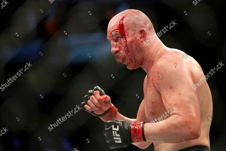 Patrick Cummins, with blood streaming from cuts, is seen in action against Gian Villante during their mixed martial arts bout at UFC on Fox 25, in New York. Cummins won via split decision
