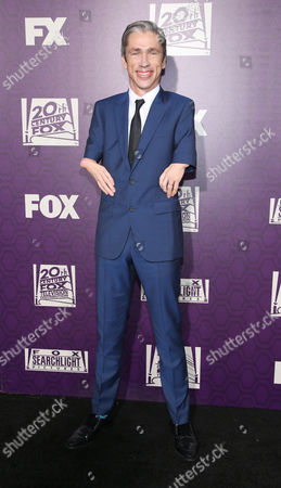 Mat Fraser arrives at the Fox Searchlight Golden Globes afterparty at the Beverly Hilton Hotel, in Beverly Hills, Calif