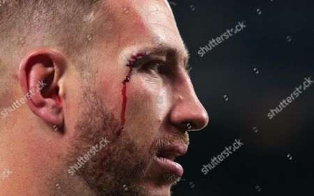Luke Romano of New Zealand with stitches above his eye