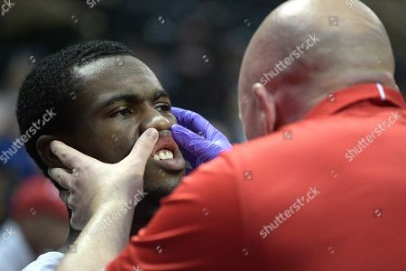 Marist guard Austin Williams has his mouth checked by a trainer after a collision on the court during the first half of an NCAA college basketball game against Oregon State at the AdvoCare Invitational tournament, in Lake Buena Vista, Fla