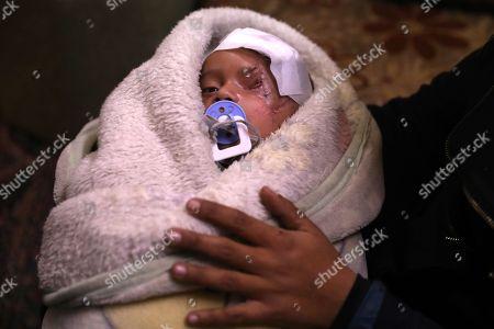 Editorial image of Karim Abdul Rahaman, a Syrian infant who was injured in Eastern al-Ghouta, Douma, Syria - 20 Dec 2017