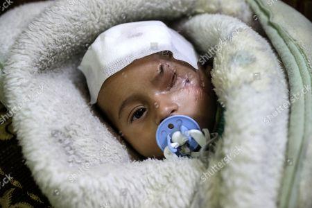 Editorial photo of Karim Abdul Rahaman, a Syrian infant who was injured in Eastern al-Ghouta, Douma, Syria - 20 Dec 2017