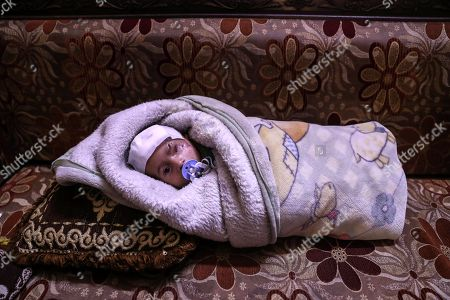 Karim, an infant who was injured twice from bombings on Eastern al-Ghouta, rebel-held Douma, Syria, 20 December 2017. On 29 October 2017 Fadya, a Syrian woman who was displaced from al-Qisa, took her three-months old child Karim Abdul Rahman from Beit Sawa (a small area with no markets in eastern al-Ghouta) to Hamoria in order to buy home supplies, during her shopping the market with bombed by forces allegedly loyal to the Syrian regime, which led to her death and her son Karim, lost his eye. After spending 10 days at a hospital he was discharged to his house, in which another bombing led to a shrapnel to injure his skull. Activists worldwide launched a campaign in solidarity with Karim as a symbol for the besiegement of Eastern al-Ghouta, hundreds joined the campaign globally on social media on #SolidarityWithKarim, including the British ambassador to the UN Matthew Rycroft.