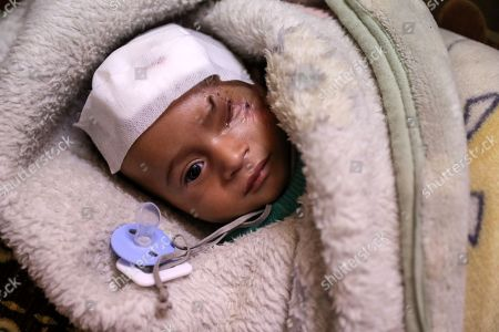 Stock Photo of Karim, an infant who was injured twice from bombings on Eastern al-Ghouta, rebel-held Douma, Syria, 20 December 2017. On 29 October 2017 Fadya, a Syrian woman who was displaced from al-Qisa, took her three-months old child Karim Abdul Rahman from Beit Sawa (a small area with no markets in eastern al-Ghouta) to Hamoria in order to buy home supplies, during her shopping the market with bombed by forces allegedly loyal to the Syrian regime, which led to her death and her son Karim, lost his eye. After spending 10 days at a hospital he was discharged to his house, in which another bombing led to a shrapnel to injure his skull. Activists worldwide launched a campaign in solidarity with Karim as a symbol for the besiegement of Eastern al-Ghouta, hundreds joined the campaign globally on social media on #SolidarityWithKarim, including the British ambassador to the UN Matthew Rycroft.