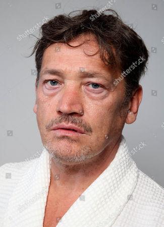 Sid Owen before treatment aged 45yrs Brain Age 67yrs : Body Age 43yrs : Face Age 54yrs