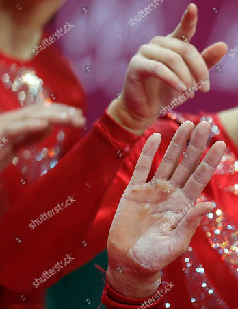 The hand of gymnast Elizabeth Tweddle from Great Britain show calluses during the artistic gymnastics women's qualifications at the 2012 Summer Olympics, in London