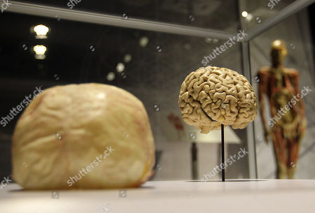 A human brain is seen at the 'Real Bodies: The Exhibition' at Byron Kennedy Hall, Entertainment Quarter, Moore Park in Sydney, New South Wales, Australia, 12 April 2018. The exhibition consists of 11 galleries, containing 20 real human bodies and 200 real human parts.