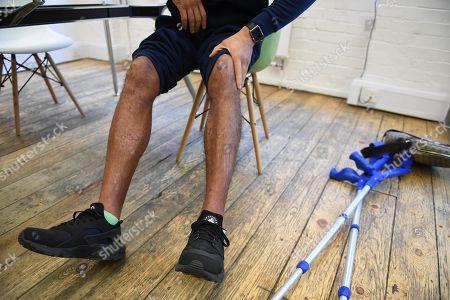 Stock Photo of James Ellington. British Sprinter James Ellington Recovering After His Motor Bike Crash In January 2017.