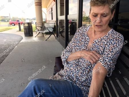 Stock Image of In a photo, Cherokee citizen Judith Anderson examines the scar tissue on her left arm from years of IV drug use outside the Redbird Smith Health Center in Sallisaw, Okla. Anderson is among hundreds of tribal citizens who have tested positive for hepatitis C in the past three years because of dangerous drug use. She's being treated for the potentially fatal liver disease thanks to a hepatitis C eradication program launched in 2015 by the tribe, partly to respond to the nation's opioid epidemic