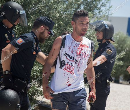 One of the detainees with blood on the shirt after being reduced and hit by the batons
