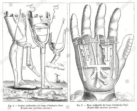 medicine,leg,hand,limb,medicine,surgery,surgical,surgeon,prosthesis