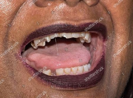 Diane Abbott. Diversity Night At A Party Hosted By Labour Mp Keith Vaz. Dianne Abbots Broken Teeth.