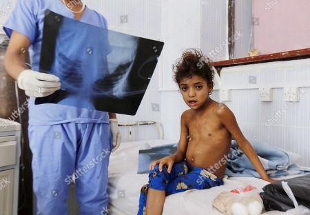 Diphtheria epidemic in Yemen