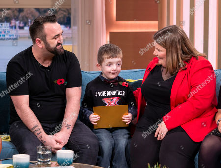 Danny Tetley and X Factor Fans with a cleft palate